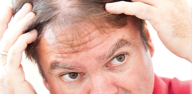 New Help for Thinning Hair Jacob Teitelbaum