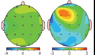 QEEG Brain Mapping