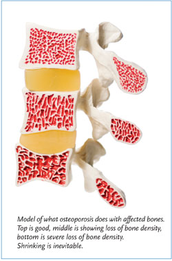 Male Osteoporosis